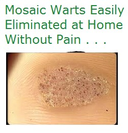 How to get rid of painful plantar warts