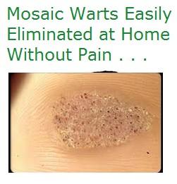 Mosaic Warts