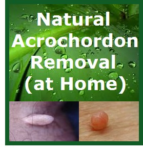 Acrochordon Removal